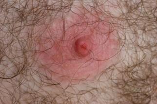 bloody nipple